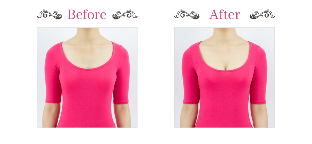 Before & After 着用前
